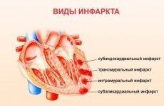 ЛФК при інфаркті міокарда: комплекс фізичних вправ, гімнастика та лікувальна фізкультура