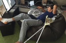 ЛФК після перелому кісточки – найголовніший метод лікування травми