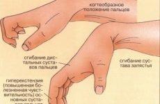 Тренажери для реабілітації після інсульту: відновлення рук і ніг