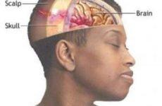 Скальпована рана: лікування, наслідки та перша допомога при важких ураженнях голови