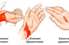 Види кровотеч та їх характеристика: класифікація типів крововиливів, ознаки та надання першої допомоги