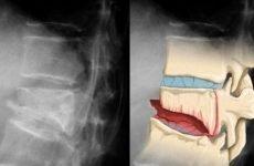 Перелом грудного відділу хребта: механізм отримання травми, класифікація, симптоматичні ознаки і особливості пошкодження, способи діагностики та лікування