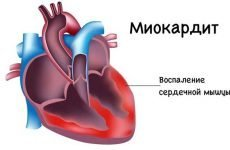 Серцевий кашель: симптоми, лікування, ознаки у літніх людей