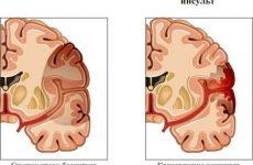 Особливості правостороннього інсульту головного мозку