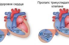 Лікування та діагностика пролапсу трикуспідального клапана