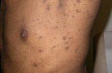 Чорний лишай: причини, симптоми і лікування