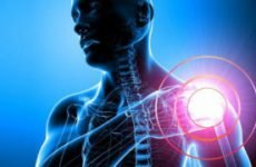 Перелом плечового суглоба із зміщенням і без: лікування та реабілітація