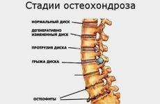 Чому підвищується тиск при остеохондрозі шийного відділу і які ризики розвитку гіпертонії?