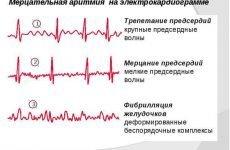 Миготлива аритмія на ЕКГ: ознаки та діагностика