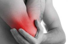 Латеральний епікондиліт ліктьового суглоба: лікування, симптоми, народні засоби