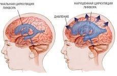 Внутрішньочерепна гіпертензія у дітей і новонароджених — симптоми, діагностика і лікування