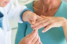 Псоріаз на руках: причини і лікування. Як і чим лікувати псоріаз на пальцях рук
