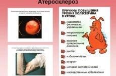 Діагностика атеросклерозу судин: методи обстеження