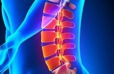 Перелом відростка хребта в поперековому відділі: причини, симптоми, лікування