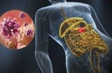 Хронічний ентерит: симптоми і лікування у дорослих, дієта, кал при хронічному ентериті, препарати