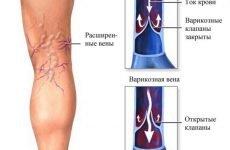 Профілактика і лікування варикозу під час вагітності