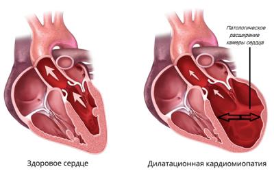Кардіогенний набряк легень: симптоми і невідкладна допомога
