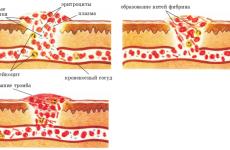 Основні принципи профілактики тромбозу судин