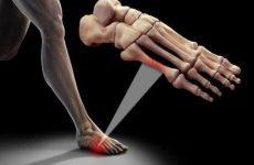 Скільки зростається перелом мізинця на нозі: симптоматика та причини, лікування і терміни відновлення