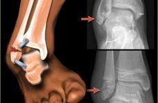 Що таке перелом щиколотки і як з ним боротися