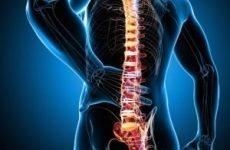 Які наслідки компресійного перелому хребта