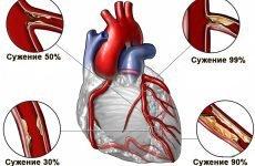 Причини розвитку атеросклерозу судин серця і його наслідки