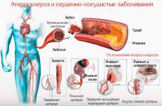 Часникова настоянка для чищення судин: з імбиром, лимоном і журавлиною