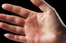 Гнійна екзема на руках: причини, симптоми і лікування