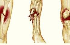 Термін зрощення перелому гомілки – анатомія травми, можливі наслідки і терміни відновлення організму