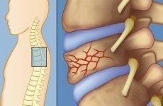 Компресійний перелом грудного відділу хребта у дітей — особливості травми