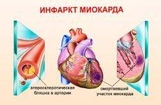 Нижній інфаркт міокарда: що це таке, ЕКГ нижньої стінки лівого шлунка