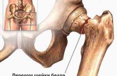 Як розпізнати патологію і що робити при переломі шийки стегна, перевірені методи реабілітації