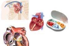Операція по припікання при аритмії серця: чи можна робити і які наслідки