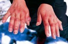 Чому лопаються судини на руках і пальцях: причини і що робити