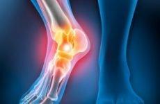 Як відбувається закритий перелом гомілковостопного суглоба, класифікація травм, симптоми і методи лікування