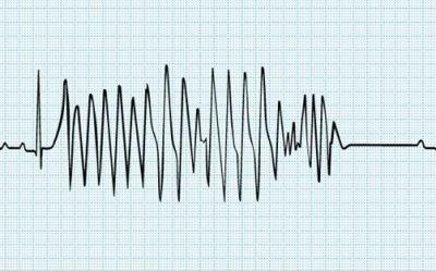 Таблетки від високого пульсу: список препаратів при нормальному і підвищеному тиску