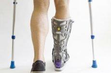 Небезпечний перелом 5 плеснової кістки стопи