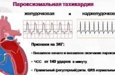 Пароксизмальна шлуночкова тахікардія