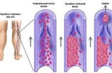 Ознаки і симптоми тромбу в нозі