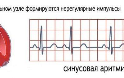 Аритмія серця у чоловіків: причини, ознаки і симптоми