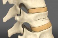 Лікування компресійного перелому хребта поперекового відділу дому, симптоми та наслідки