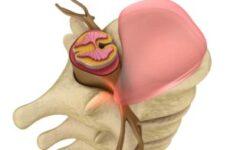 Протрузія міжхребцевих дисків поперекового відділу: лікування, як лікувати?