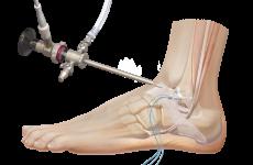 Яка операція на гомілковостопному суглобі при переломі проводиться, реабілітаційні заходи