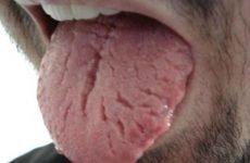 Глосит мови: симптоми і лікування, фото, як лікувати, причини у дорослих