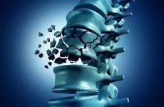 Чим небезпечний компресійний перелом поперекового хребця