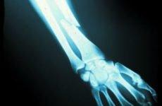 Перелом передпліччя: лікування травми (частина 3)