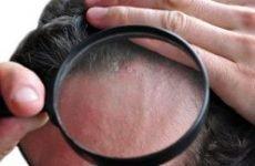 Себорейний лишай: причини, симптоми і лікування