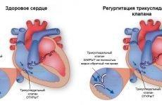 Причини, симптоми і лікування трикуспідального регургітації