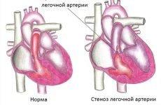 Лікування, діагностика та профілактика стенозу легеневої артерії