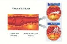 Що таке нестабільна стенокардія?